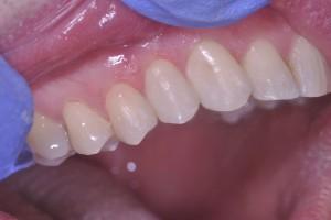goede stand tanden bovengebit